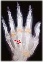 Microchip Obligatorio para el 2013 en Estados Unidos Implant09_04