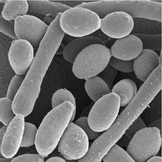 Mycose : 4 façons douces de traiter une candidose - Top Santé